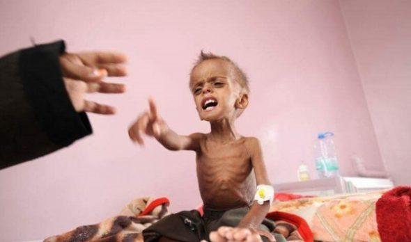 الوقت ينفد.. الأمم المتحدة: اليمن يمر بأسو مجاعة يشهدها العالم منذ عقود